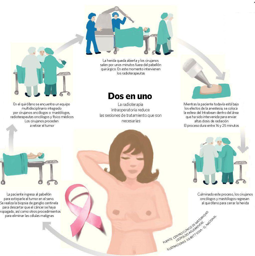 Tratamiento del tumor maligno en el pecho